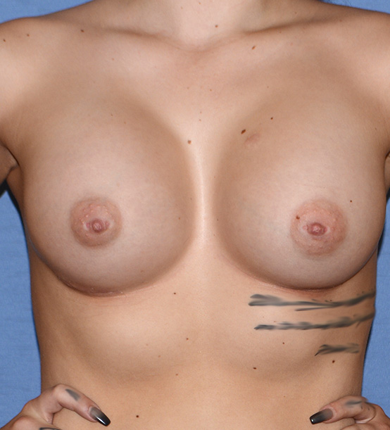 Breast Implant | Augmentation Front one Day After