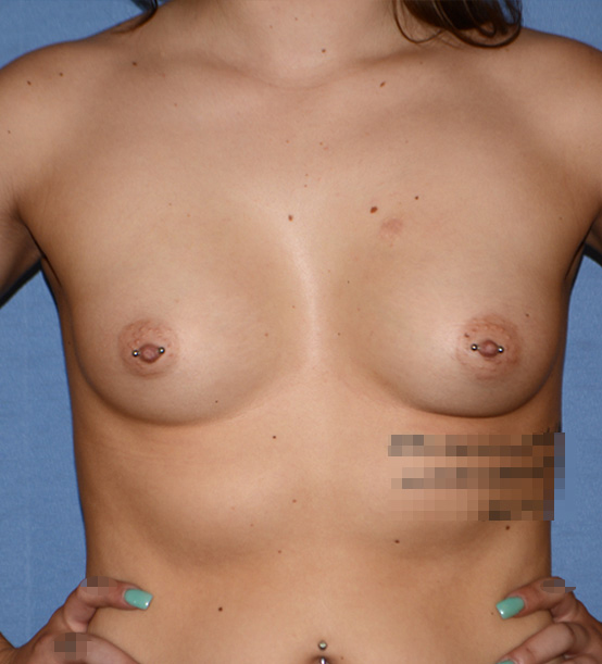 Breast Implant   Augmentation Before Front View