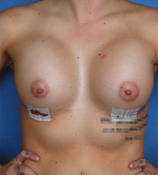 Breast Implant   Augmentation Front one Day After