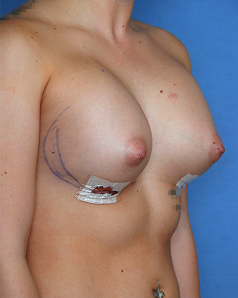 Breast Implant   Augmentation Before Oblique View Right Side After DAY 1