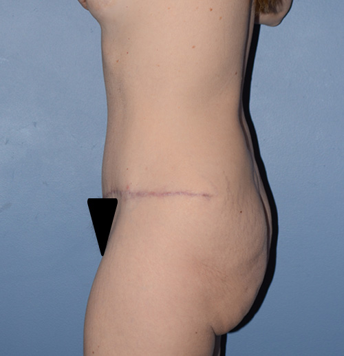 tummy tuck with liposuction lateral view