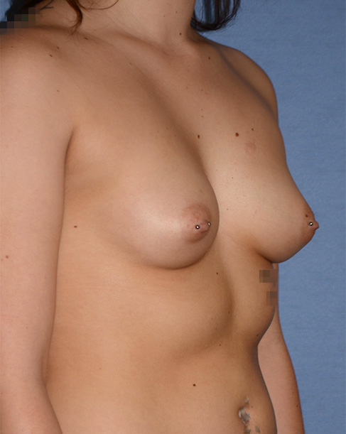 Breast Implant | Augmentation Before Oblique View Right Side Before