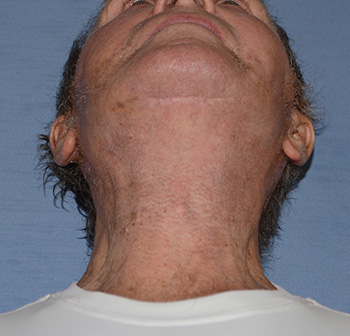 facelift neck lift