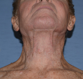 facelift neck lift